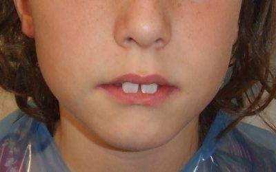 Tratamiento de clase II esquelética con mandíbula retrusiva